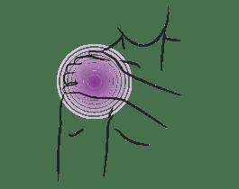 Epione-Shoulder-Pain